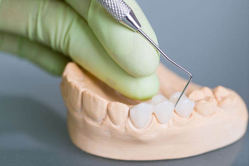 dental bridge model