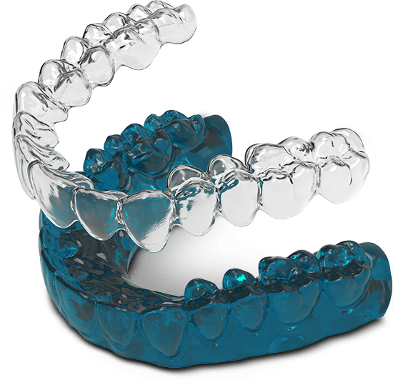invisalign model