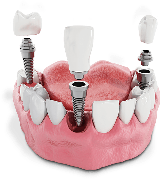 multiple dental implant model