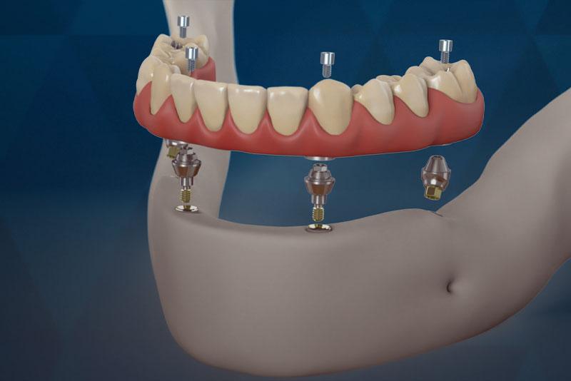dental_implants_Georgia
