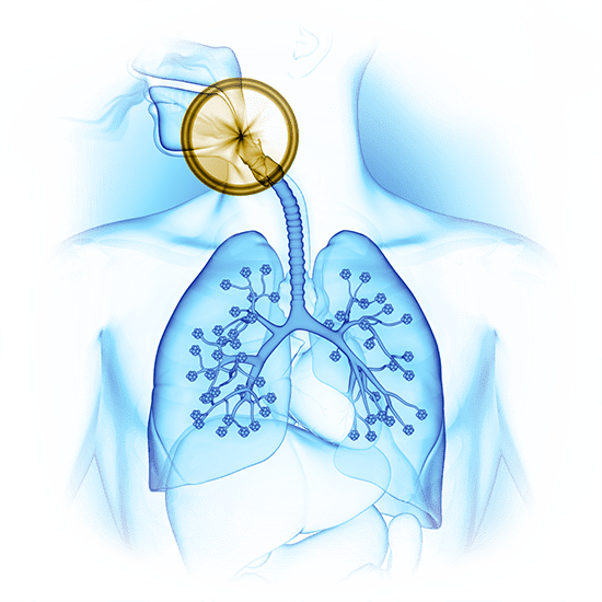 sleep apnea graphic