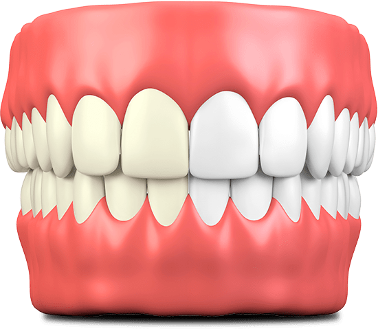 teeth whitening graphic