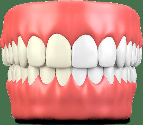 teeth whitening graphic
