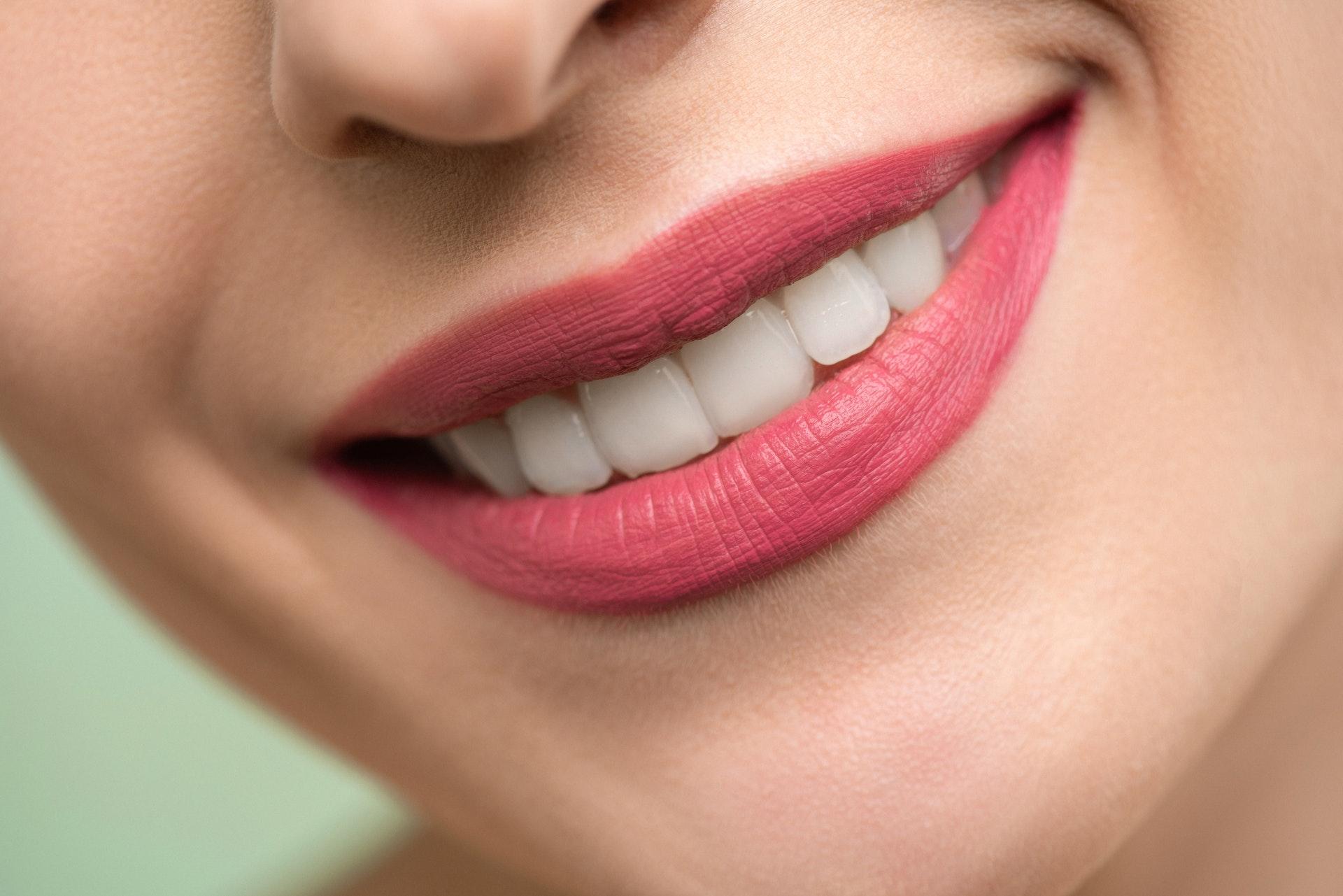 professional_teeth_whitening_Georgia