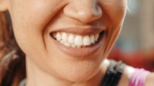 ar_braces_dentist_South_Carolina
